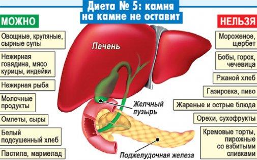 Признаки и лечение камней в желчном пузыре