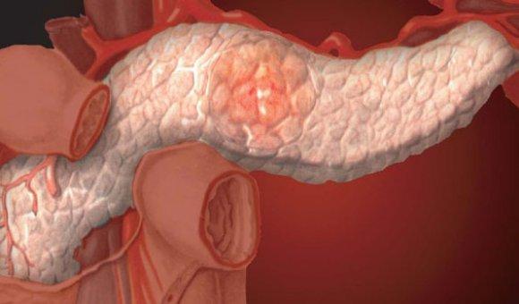Признаки и лечение воспаления поджелудочной железы у взрослых и детей