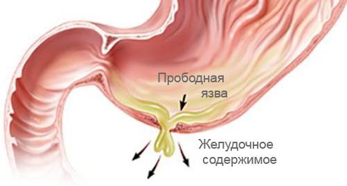 Прободная язва желудка (перфоративная): симптомы, признаки, питание и диета после операции