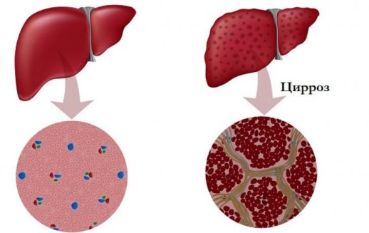 Прогноз и последствия асцита брюшной полости