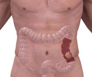 Рак кишечника или аденокарценома: что это и сколько живут