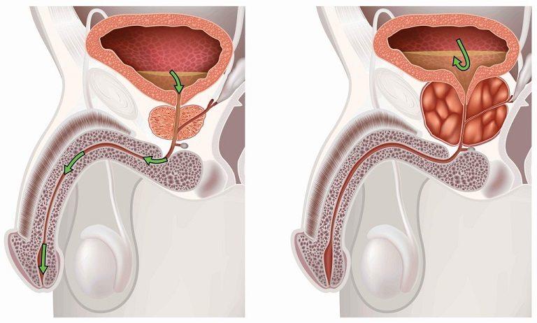 Лечение бактериального простатита у мужчин лекарства 3