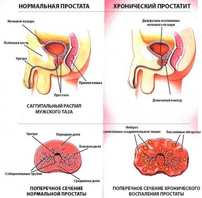 Хронический простатита можно ли полностью вылечить чем лечится простатит форум