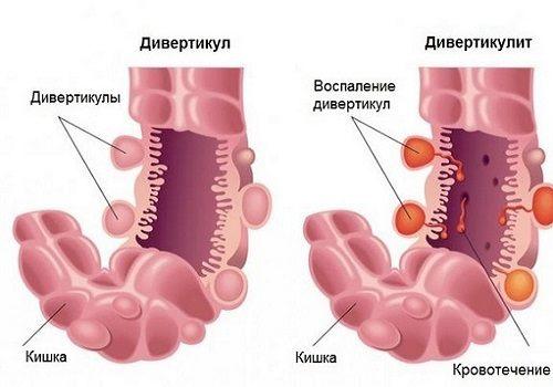 Симптомы и лечение дивертикулита кишечника