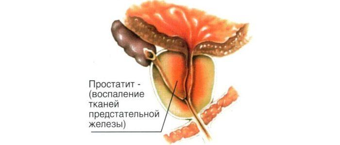 Симптомы и лечение хронического абактериального простатита