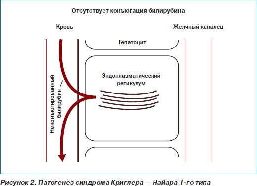 Синдром Криглера-Найяра 1 и 2 типа