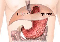 Скользящая грыжа пищевода: симптомы, причины и методы лечения
