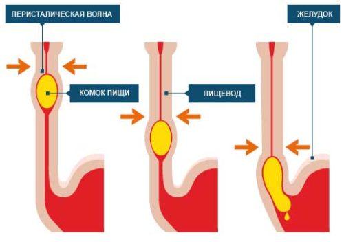 Спазм пищевода (эзофагоспазм): причины, симптомы и лечение, как снять приступ в домашних условиях