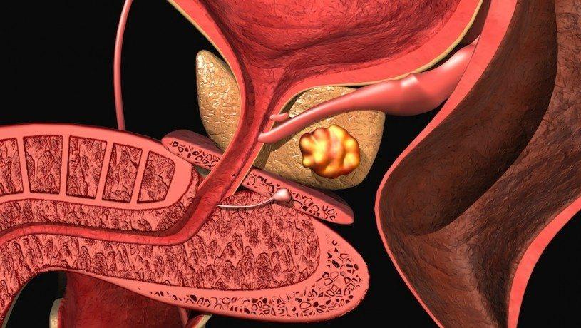 Стадии и способы классификации рака предстательной железы