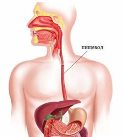 Стеноз пищевода (сужение, стриктура): симптомы, причины и лечение у взрослых и детей