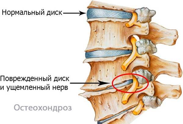 Ультразвуковая допплерография (УЗДГ) сосудов головы и шеи
