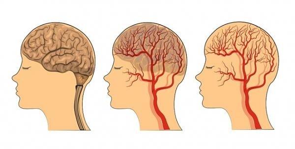 Ультразвуковое дуплексное сканирование (УЗДС) сосудов головы и шеи