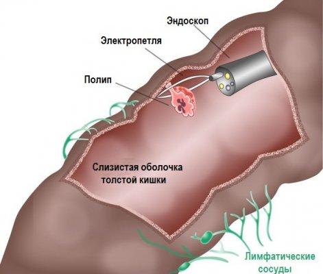В чем разница ирригоскопии от колоноскопии?