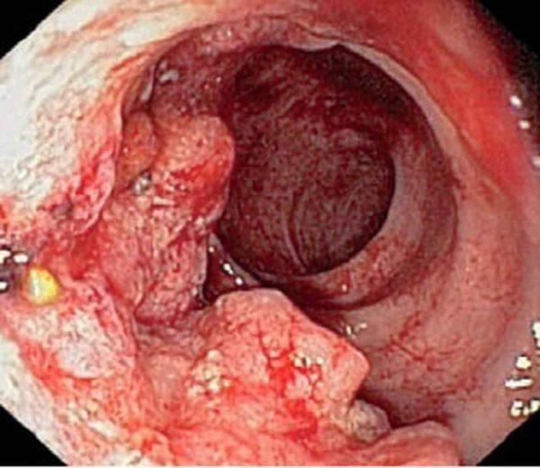 Воспаление сфинктера прямой кишки: фото и лечение