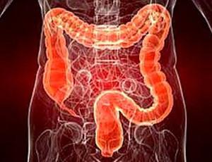 Воспаление толстого кишечника у женщин и мужчин: симптомы и лечение