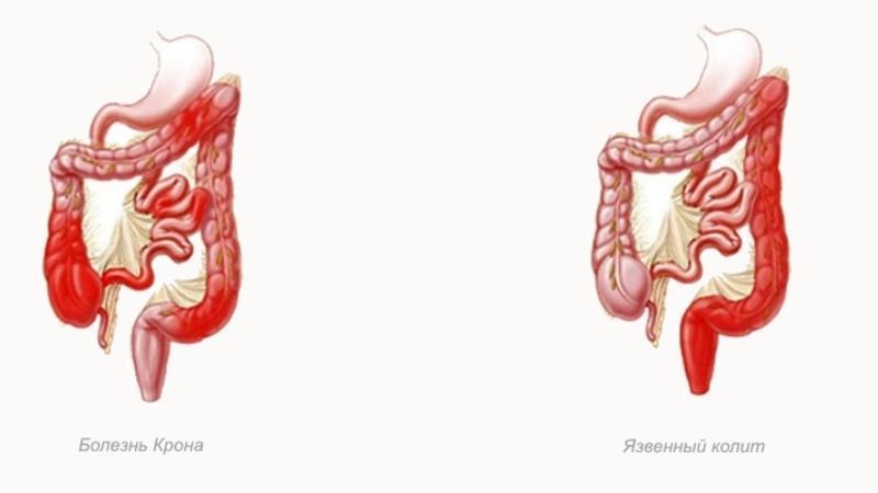 Воспаление толстой кишки: причины, симптомы и лечение