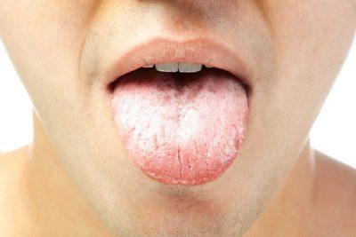 Язык при гастрите: как выглядит, что если появляется белый налет и жжет, причины и методы лечения