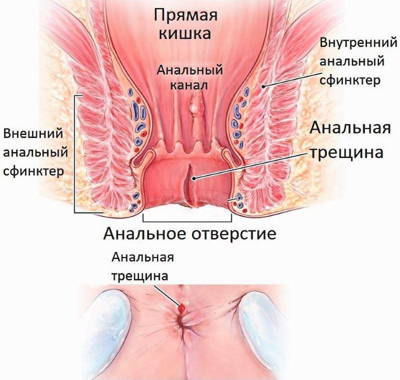 Заболевания прямой кишки и заднего прохода: список болезней ануса