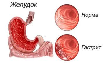 Жжение в желудке: причины и методы лечение