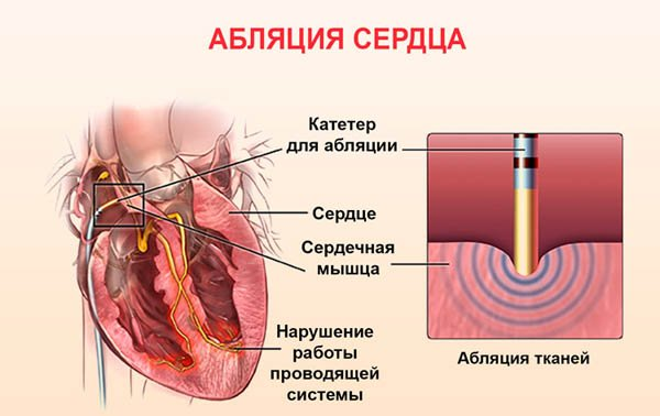 Абляция сердца при мерцательной аритмии