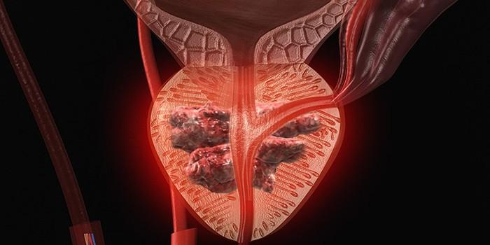 Аденокарцинома простаты: симптомы, классификация, лечение