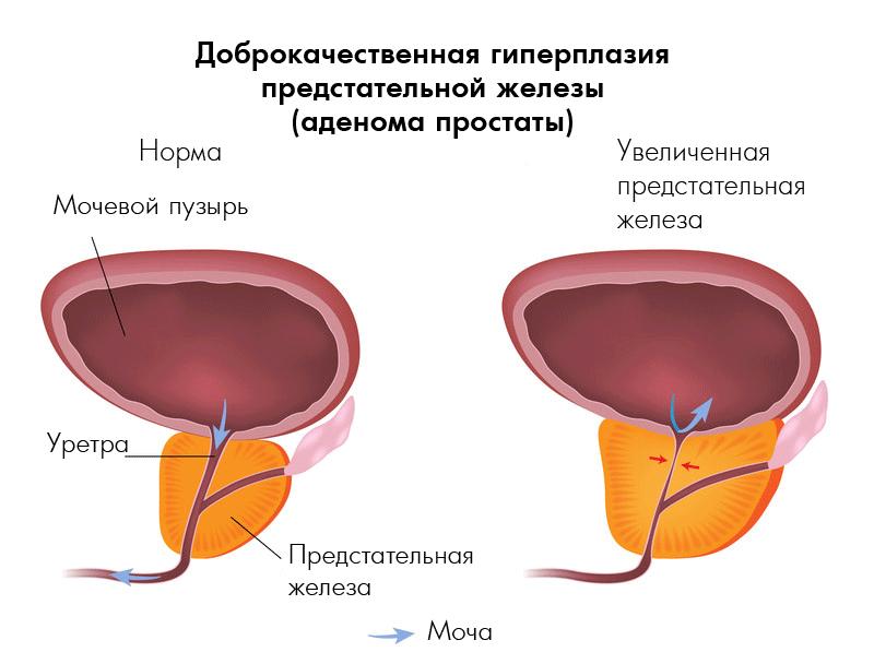 Аденома предстательной железы 3 степени: причины, признаки, методы диагностики и терапии
