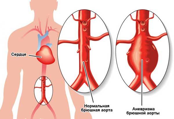 Аневризма брюшной полости аорты: признаки, диагностика и лечение патологии