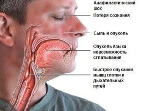 Аптечка при анафилактическом шоке, состав: причины, признаки, оказание помощи пострадавшему
