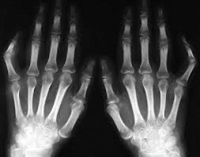 Артропатический псориаз: описание, симптомы и причины заболевания ЛечениеБолезней.com