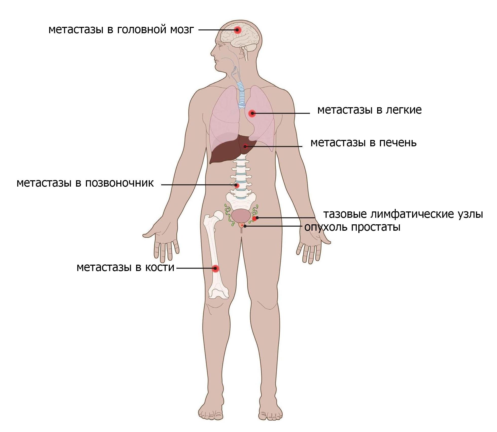 Биохимический рецидив после удаления простаты: причины, симптомы, лечение, профилактика