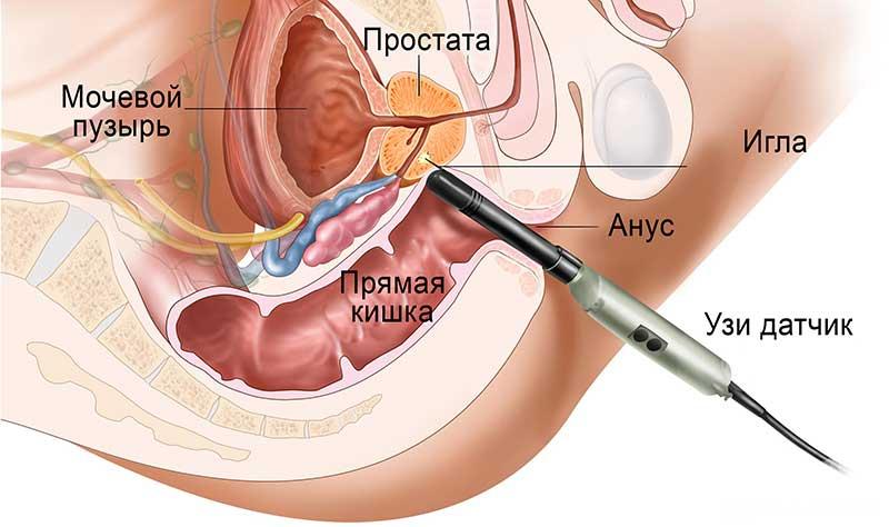 Биопсия простаты: показания, виды, способ проведения