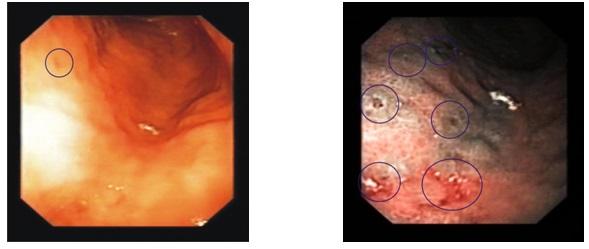 Что означает диагноз дуоденит желудка?