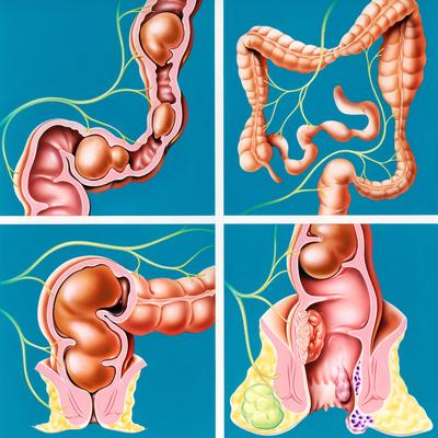 Что такое аденоматозный полип толстой кишки и как его вылечить