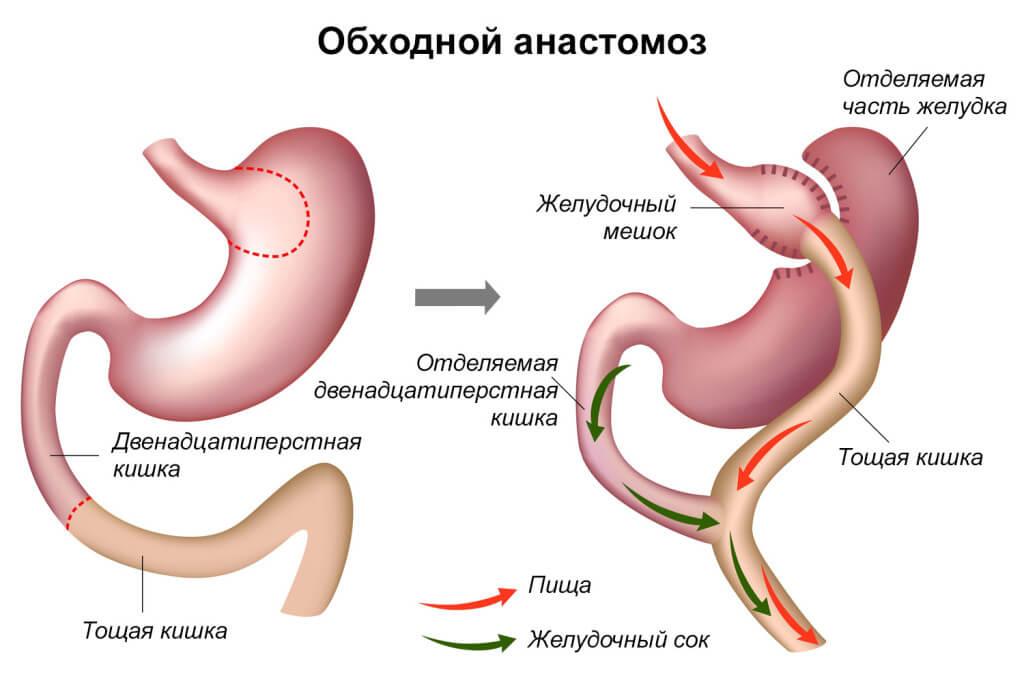 Что такое анастомоз кишечника? Подготовка и последствия операции