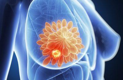 Что такое фиброзно-кистозная мастопатия с преобладанием фиброзного компонента? ЛечениеБолезней.com