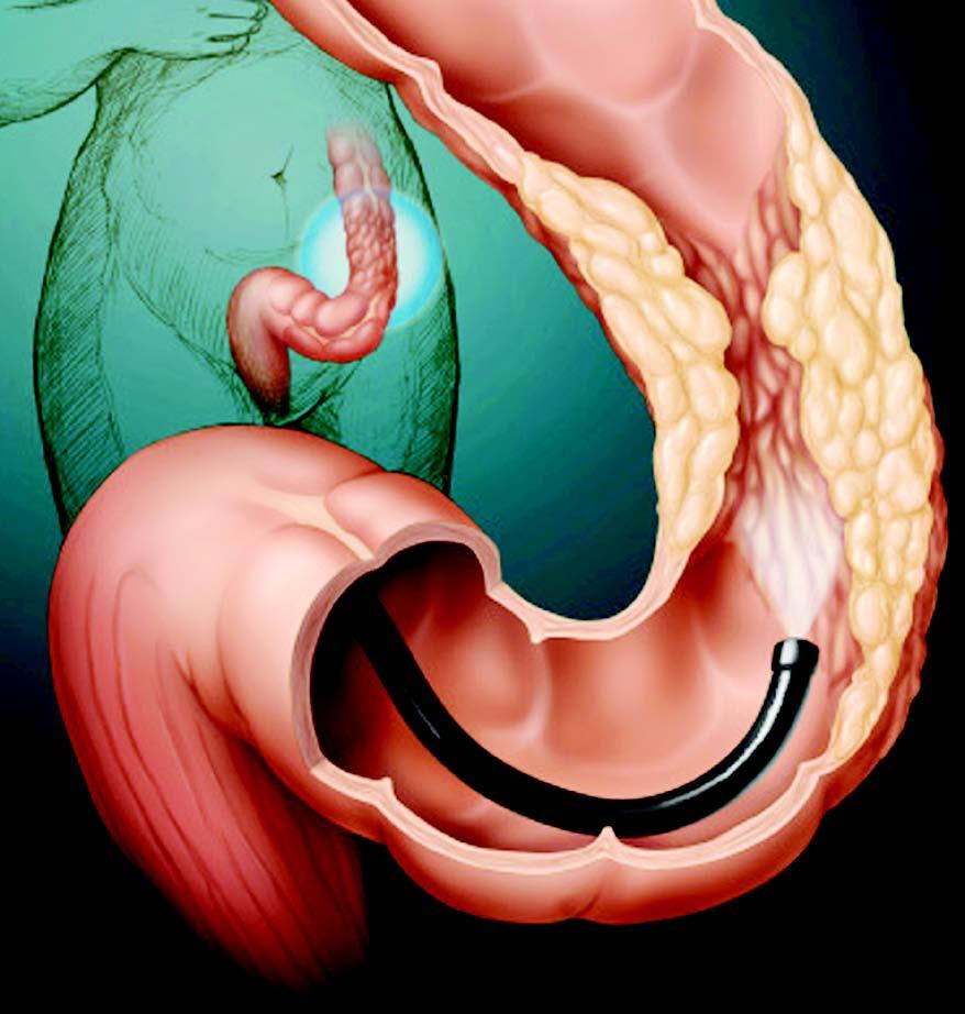 Что такое гиперплазиогенный полип желудка?