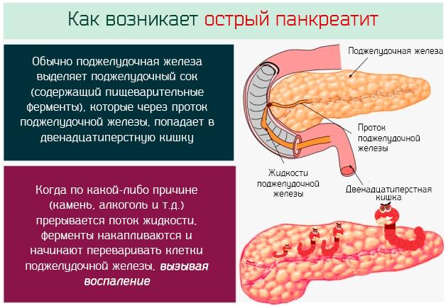 Что такое Панкреатит: признаки и лечение