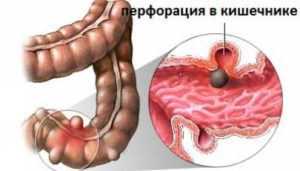 Что такое перфорация кишечника, какими симптомами сопровождается?