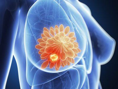 Что такое пролиферативная фиброзно-кистозная мастопатия? Какие формы данного заболевания бывают? ЛечениеБолезней.com
