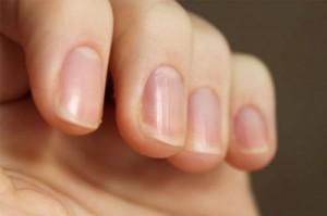 Что такое псориаз ногтей и как его лечить ЛечениеБолезней.com