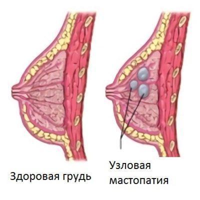 Диагностика железисто-кистозной мастопатии и современные способы лечения заболевания ЛечениеБолезней.com
