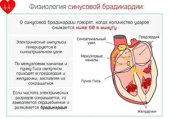 Диагноз — брадикардия сердца, как возникает и что это такое