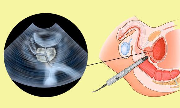 Диффузные изменения простаты: причины и лечение