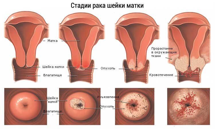 Эффективное лечение эрозии шейки матки, симптомы, причины и диагностика воспаления ЛечениеБолезней.com