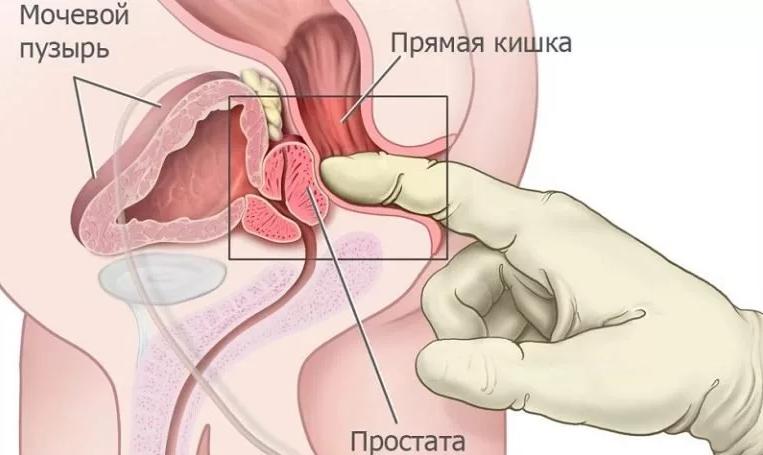 Секс при простатите и аденоме простатит хронический последствия