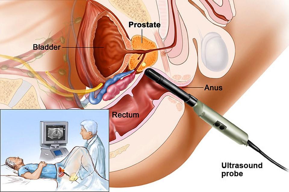 Лечение простатита быстрое семяизвержение простатит интересные факты