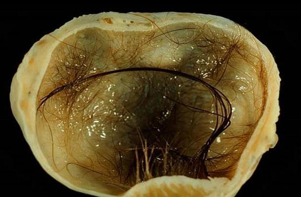 Герминогенные опухоли яичников