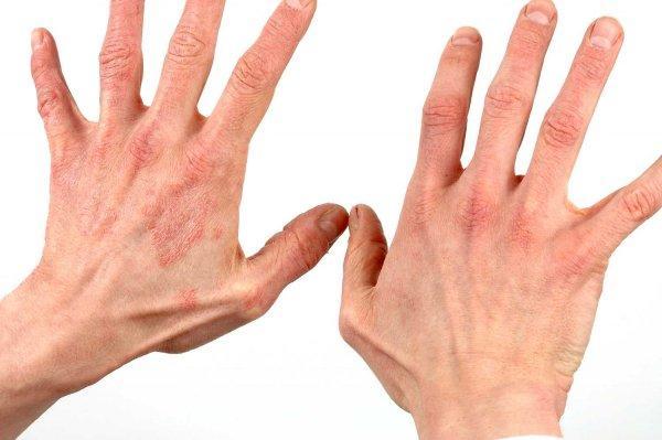 Хроническое заболевание псориаз на руках: описание, фото, методы лечения и профилактики ЛечениеБолезней.com