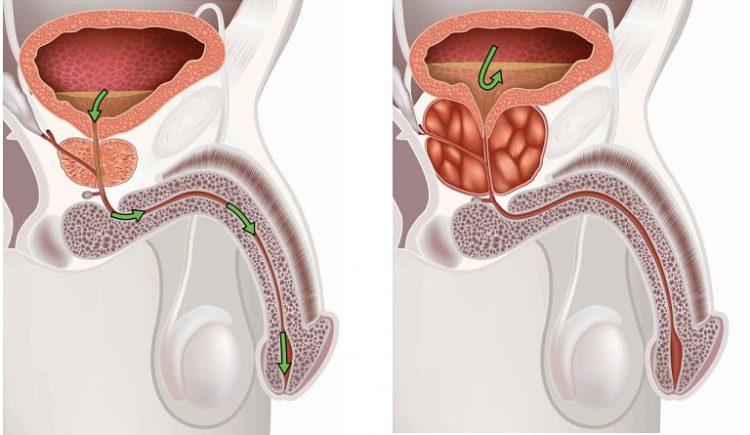 Как появляется простатит, симптомы заболевания у мужчин и фото, лечение антибиотиками ЛечениеБолезней.com