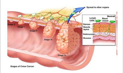 Как проявляется рак ободочной кишки и как его вылечить
